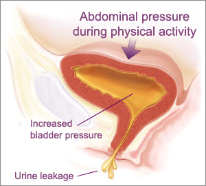 źródło: http://www.indianmedguru.com/urine-leakage-incontinence-bladder-surgery-india-low-cost-benefits.html